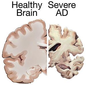 A healthy brain compared to a brain suffering from Alzheimer's Disease