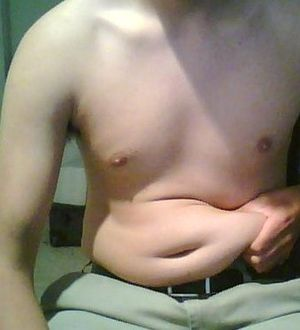 Excess adipose tissue around a male's belly is a form of obesity